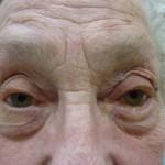 Eyelid Malposition
