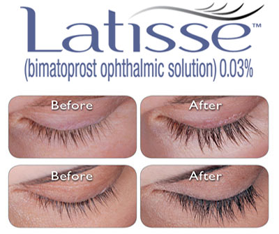 latisse_before and after photos  eyelash enhancement