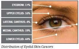 Eyelid Cancer: Diagnosis