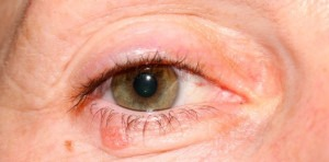 Eyelid Cancer: Biopsy