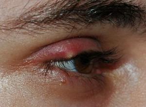 Eyelid Cancer: Removal