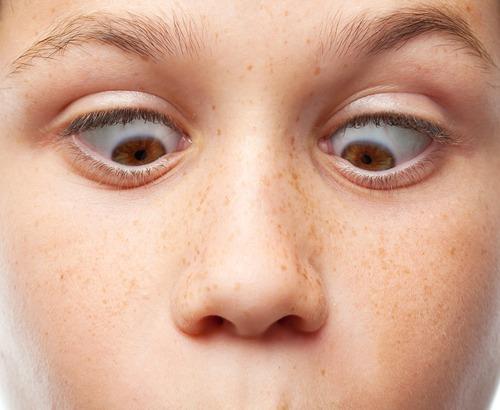 Squint / Crossed Eye Treatments