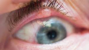 What Causes Eyelid Lesions?