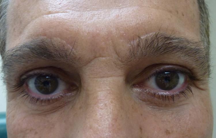 Case 1 Eye Surgeon Palm Springs Desert