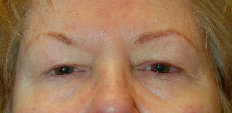 Case 1 Eye Surgeon Palm Springs Desert