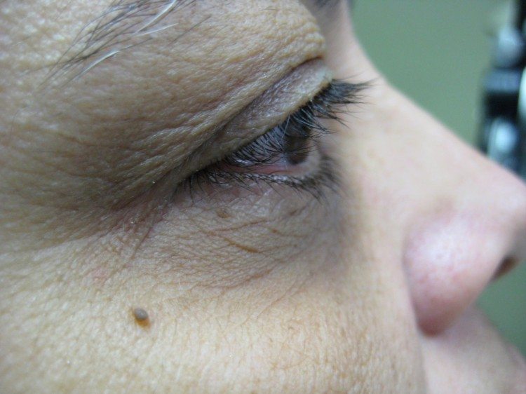 Case 1 Latisse Before and After Photos Eye Surgeon Palm Springs Desert