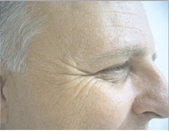 Case 1 Botox Crows Feet Before and After Photos Eye Surgeon Palm Springs Desert