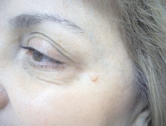 Case 2 Eye Surgeon Palm Springs Desert