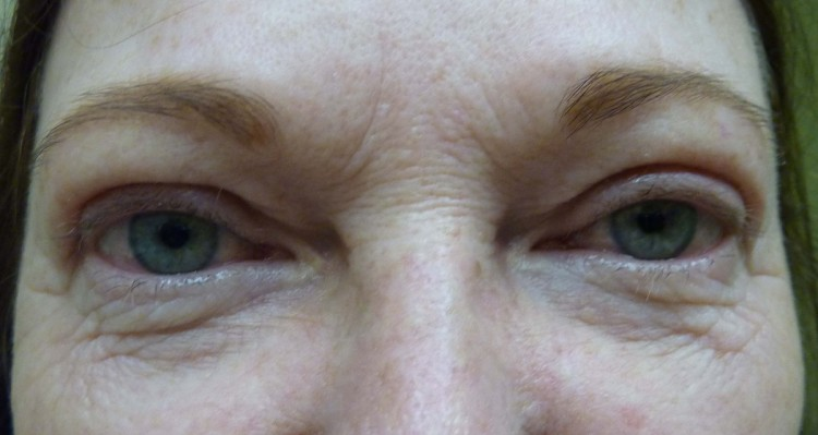 Case 2 Upper Eyelid Ptosis Before and After Photos Eye Surgeon Palm Springs Desert
