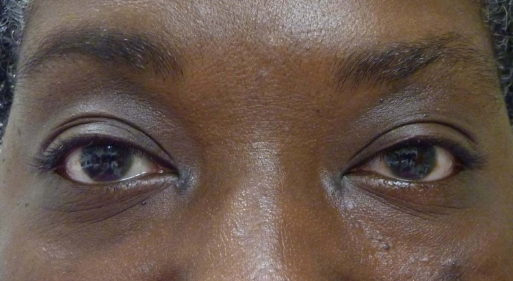 Case 6 Upper Eyelid Ptosis Before and After Photos Eye Surgeon Palm Springs Desert