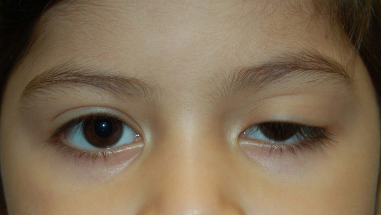 Case 3 Congenital Upper Lid Ptosis Before and After Photos Eye Surgeon Palm Springs Desert