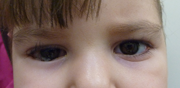 Case 1 Epiblepharon Before and After Photos Eye Surgeon Palm Springs Desert